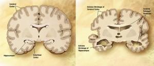 Bei der Alzheimer-Krankheit erkrankt das Gehirn. Die Nervenzellen im Gehirn gehen zugrunde.