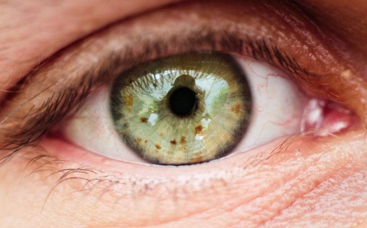 Nahaufnahme eines Auges und Augenlids. In der grünen Iris spiegelt sich der Fotograf und die Szenerie. Die Iris ist von kleinen braunen Punkten gespickt. Foto: Jonas Kessel